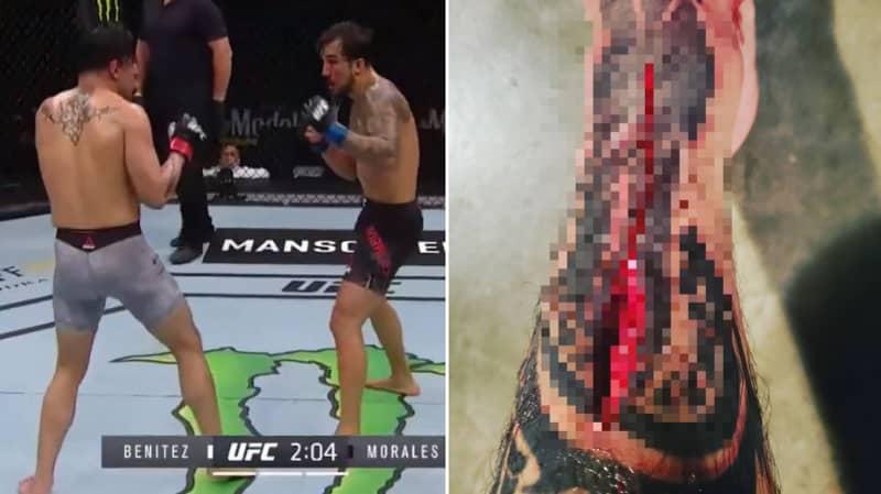 UFC Fighter Gabriel Benitez Suffers Horrifying Shin Wound