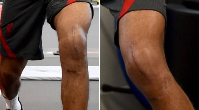 Liverpool Defender Joe Gomez Shows Off Massive Knee Scar Post-Surgery