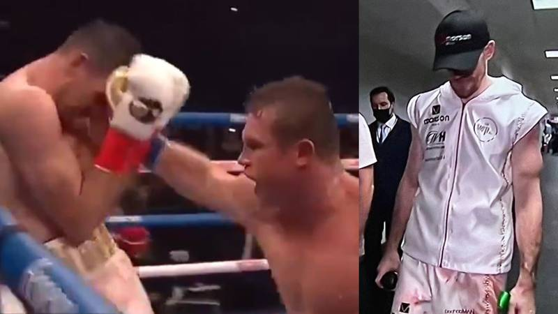 Callum Smith 'Devastated' After Gruesome Injury In Canelo Defeat