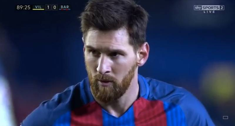 Lionel Messi Looks Set To Miss Clasico With Arm Injury