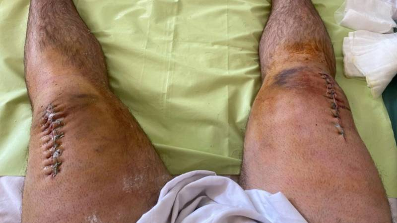 Viral Russian Powerlifter Who Fractured Both His Knees Reveals Massive Scars