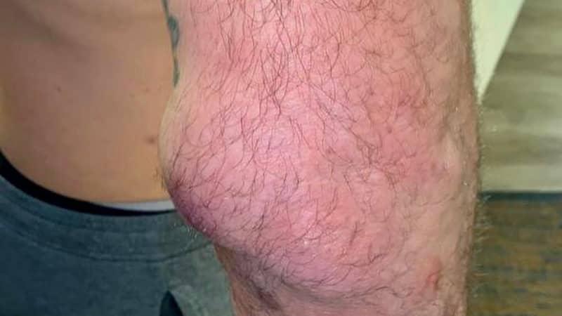 UFC Icon Shogun Rua's Swollen Elbow Blows Up Like A Golf Ball