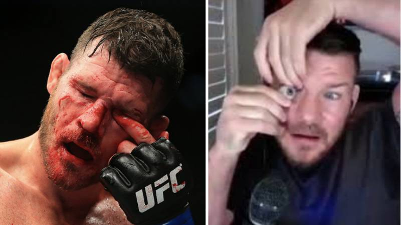 Former UFC Champion Michael Bisping Pops Out Prosthetic Eye During Podcast