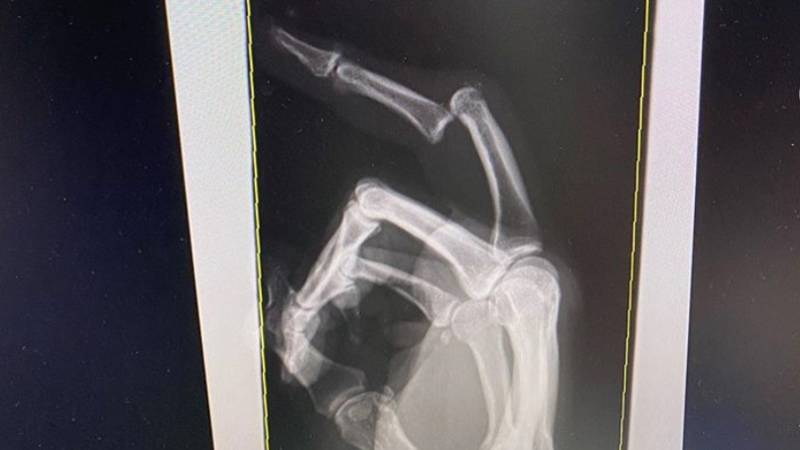 Andrew Fifita Has Posted A Picture Of His Dislocated Finger On Social Media