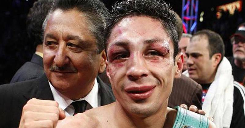Boxer Loses Right Eye Following Sustained Damage