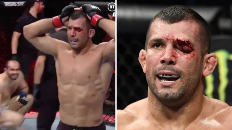 Undefeated Rodolfo Vieira Sustains Horrific Eye Injury In UFC 248 Win Over Saparbek Safarov